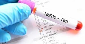 Hemoglobina glicada A1C